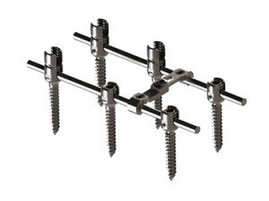 EDEN™ Spinal Fixation System